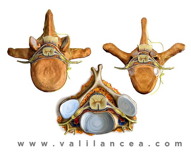 Anatomy sample Vali lancea s19.jpg
