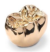 Gold Dental Crown at buffalo Dental Advanced Cosmetics