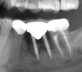 Failing Mini Dental Implants