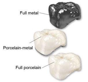 Dental crown types at buffalo Dental Adv