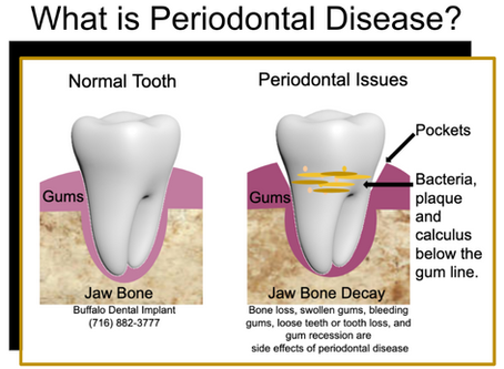 Can I treat periodontal disease or gum recession at home?
