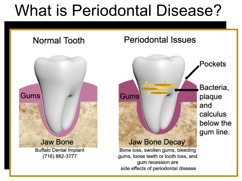 Buffalo Dental Implant - perio disease