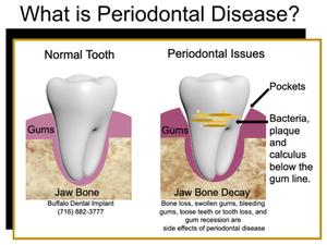 Buffalo Dental Implant - perio disease