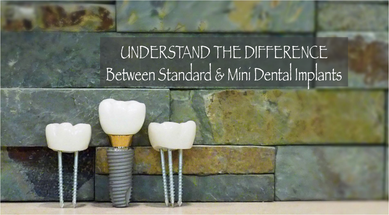 Standard vs. Mini Dental Implants