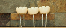 Mini Dental Implant Models
