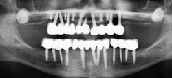5 Broken Mini Dental Implants