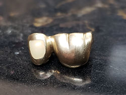 Gold Tooth Crown at Buffalo Dental Advanced Cosmetics