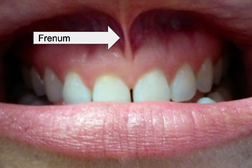 Frenum in the mouth at Buffalo Dental Implant