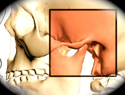 TMJ, TMD, Tempomandibular disorder, Occlusion