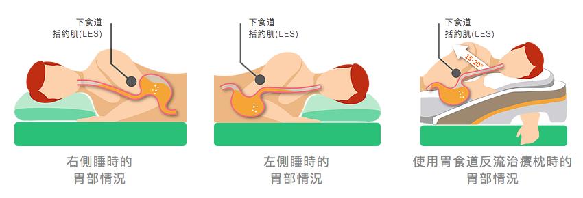 胃食道反流治療枕的原理