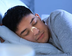 呼吸輔助貼價錢相宜,但必須精準地黏貼在有效拉開鼻道的位置才能改善鼻塞問題。此外,呼吸輔助貼含有黏合劑,容易皮膚敏感的人士需要特別注意。