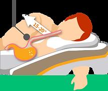 【SleepKinwood 健和醫療 - 胃酸倒流產品】MedCline 胃食道反流治療組合 - 使用MedCline時的胃部情況