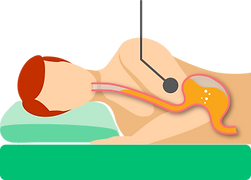【SleepKinwood 健和醫療 - 胃酸倒流產品】MedCline 胃食道反流治療組合 - 右側睡時的胃部情況