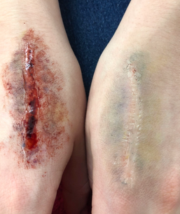 Stage makeup and prosthetics- courtesy of Nikcy Baillie