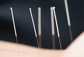 Acupuncture-Wallpaper-Download-Free.jpeg