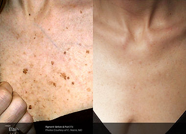 Sun spots on chest