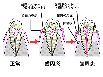 periodontal1.png