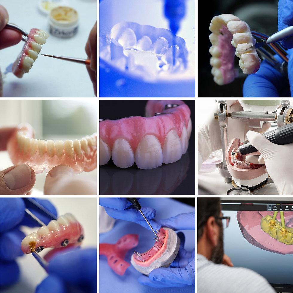 Dental hybrids prosthetics