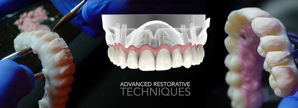 Advanced restorative dentistry