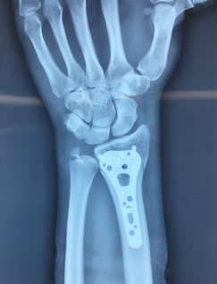 Osteosíntesis de radio distal con placa