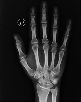 Radiografía de mano derecha