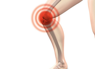 Common Lower Limb Injuries - Knee Osteoarthritis