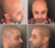 scalp+micropigmentation+tattoo+melbourne+smp+1.jpg