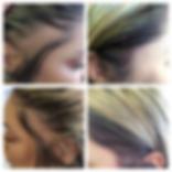 scalp-female-web.png