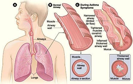 WFA 2018_IMAGE: ASTHMA.jpg