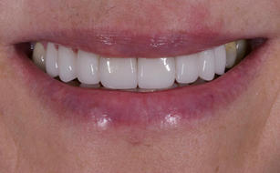 #14-24 E.max Veneers Cemented. happy patient by True Smile.