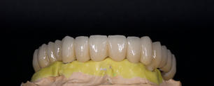 Full Mouth Cement Retained Implant Restoration.