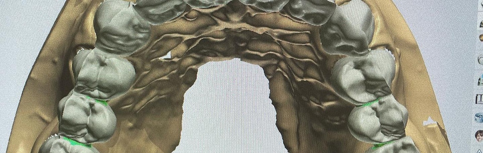 3SHAPE DESIGNING ZIRCONIA BUCCAL