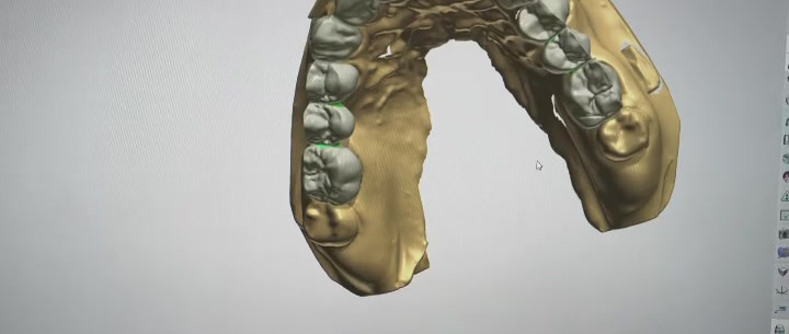 3SHAPE DESIGNING ZIRCONIA BUCCAL FACING ONLY.