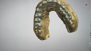 3Shape Design Buccal facing only