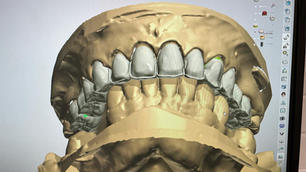 #16-26 Zirconia buccal facing only crowns.