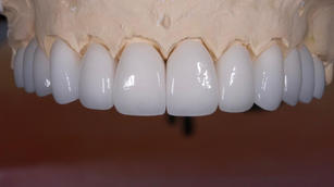 #16-26 Zirconia buccal facing only crowns finalized.