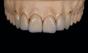 #13-23 Zirconia Layered crowns from True Smile Dental Lab