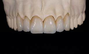 #13-23 E max Layered Crowns  from True Smile Dental Lab