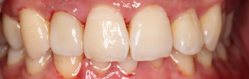 #12 Zirconia Perfect fit and shade used 3D printed Model
