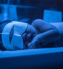 Newborn Bilirubin