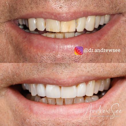 Rejuvenation of Cracking Teeth.JPG