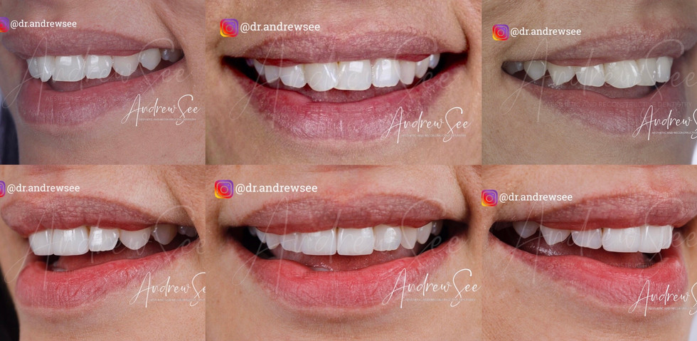 CROOKED TEETH MAKEOVER