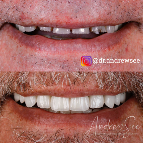 Correction of Sever Tooth Wear.JPG