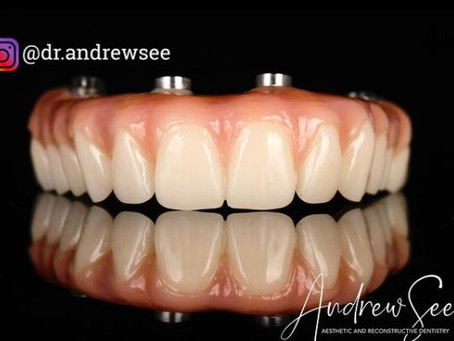 Achieving a great smile with dental implants