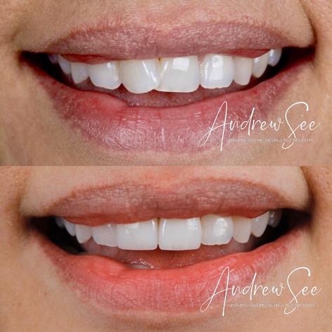 No Orthodontics.JPG