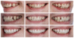 Collage Crowding Veneers.JPG