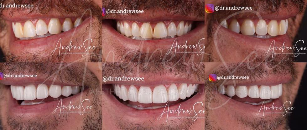 B Smile Collage.jpg
