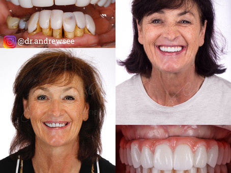 How to get a new smile when you have missing and infected teeth.