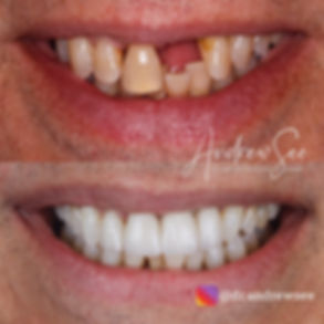 4 Options for a Missing Tooth