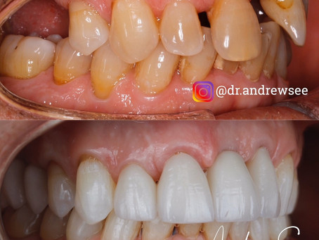 How to Rejuvenate your Smile when you have Missing Teeth